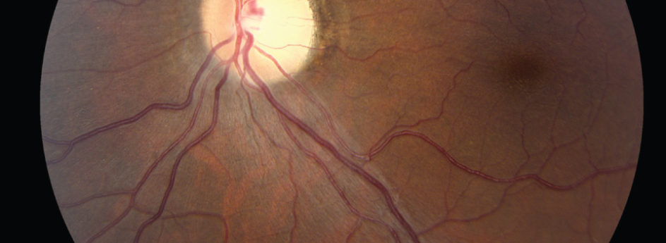 What is Optic Neuritis?